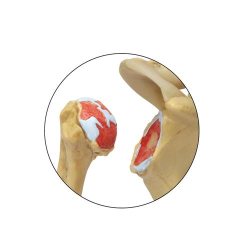 4 Stage Osteoarthritis (OA) Shoulder Model, 1019514, Joint Models