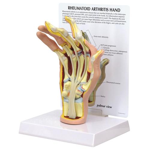 Rheumatoid Arthritis Hand Model, 1019521, Arm and Hand Skeleton Models