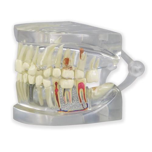 Clear Human Jaw with teeth model, 1019540, Dental Models