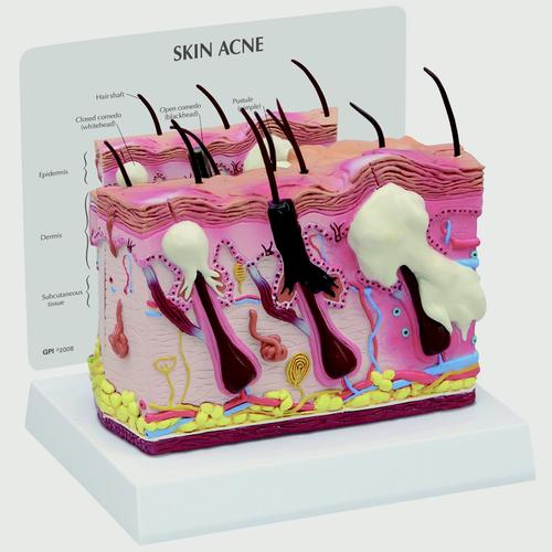 Skin Acne Model, 2 Sided, 1019568, Skin Models
