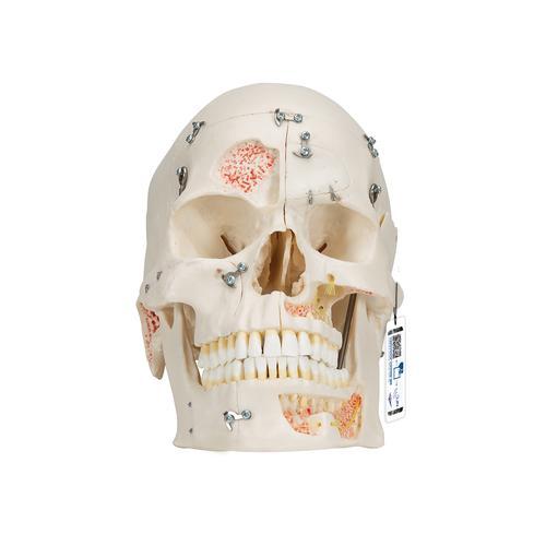 0部分 头颅 解剖学模型 3B Scientific