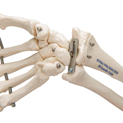 Human Hand Skeleton Model with Ulna & Radius, Wire Mounted - 3B Smart Anatomy, 1019370 [A41], Arm and Hand Skeleton Models