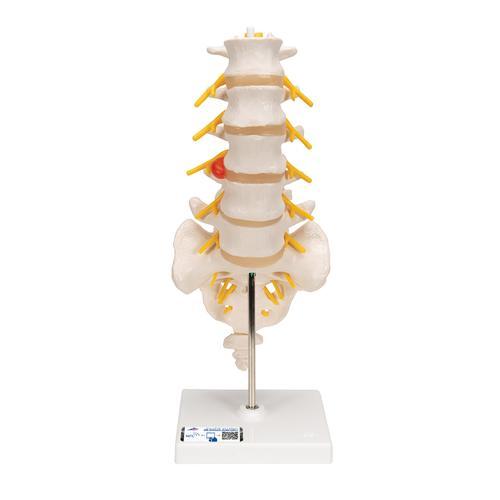 Anatomical Teaching Models   Plastic Vertebrae Model   Lumbar Spinal ...