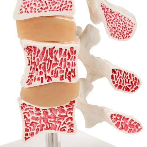Deluxe Human Osteoporosis Model (3 Vertebrae with Discs ), Removable on Stand - 3B Smart Anatomy, 1000153 [A78], Vertebra Models