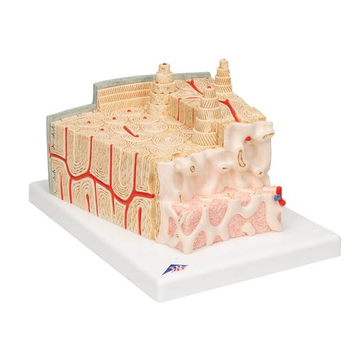 3B MICROanatomy™ Human Bone Structure, 80 times enlarged - 3B Smart Anatomy, 1000154 [A79], Microanatomy Models