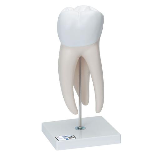 D15: Giant Molar with Dental Cavities, 15 times life size, 6 part