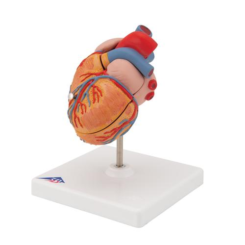 Classic Human Heart Model with Left Ventricular Hypertrophy (LVH), 2 part - 3B Smart Anatomy, 1000261 [G04], Human Heart Models