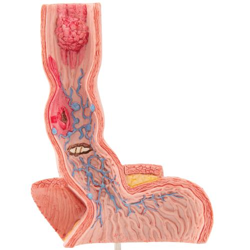 Life-Size Human Esophagus Diseases Model - 3B Smart Anatomy, 1000305 [K18], Digestive System Models