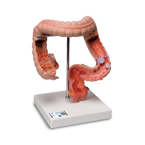 Intestinal Diseases 1008496 3b Scientific K55 Anatomical