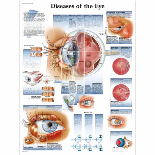Diseases of the Eye Chart, 1001498 [VR1231L], Ophthalmology