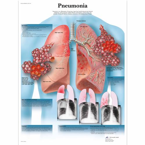 Pneumonia Chart, 4006676 [VR1326UU], Parasitic, Viral or Bacterial Infection
