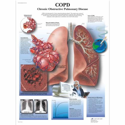 COPD Chart - Chronic Obstructive Pulmonary Disease, 4006678 [VR1329UU], Respiratory System