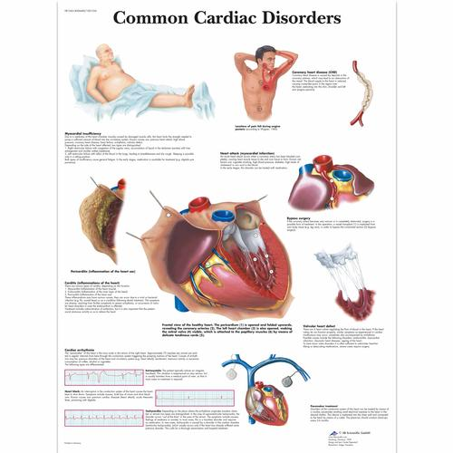Common Cardiac Disorders Chart - 4006680 - VR1343UU - Cardiovascular ...