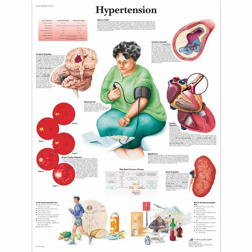 Hypertension Chart, 1001532 [VR1361L], Cardiovascular System