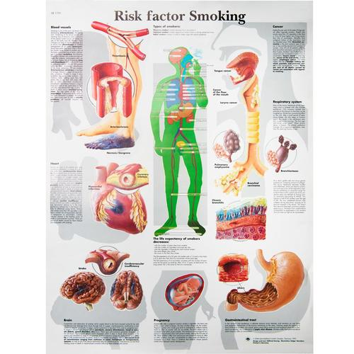 Risk factor Smoking, VR1791UU, Addiction