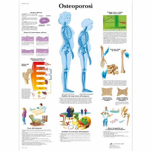 Osteoporosi, 4006898 [VR4121UU], Arthritis and Osteoporosis Education