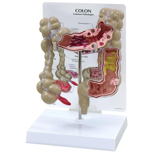 Colon Model, 1019554 [W33364], Digestive System Models