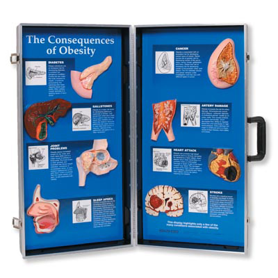 The Consequences of Obesity 3D Display, 3004616 [W43057], Nutrition Education