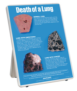 Death of a Lung Easel Display, 3004660 [W43111], Tobacco Education