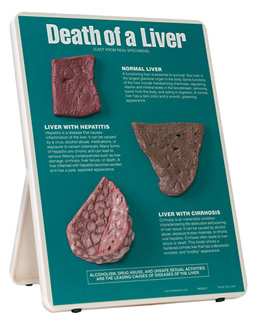 Death of a Liver Easel Display, 1020786 [W43114], Drug and Alcohol Education