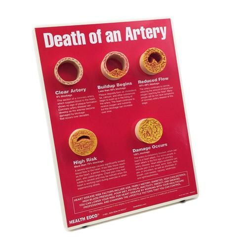 Death of An Artery Easel Display, 1018290 [W43121], Nutrition Education
