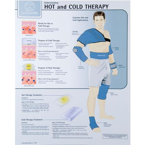 Hot and Cold Therapy Chart - Laminated, W59505, Fitness