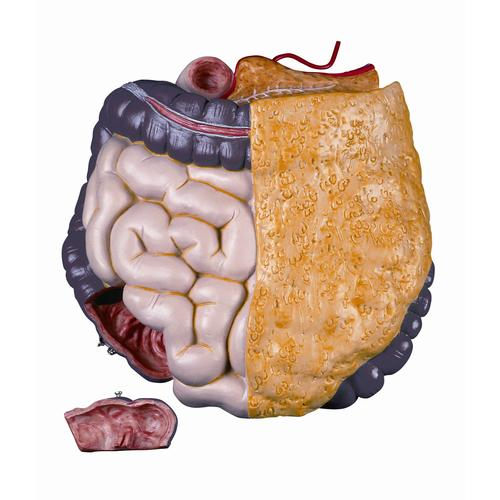 XB016: Spare intestine package, 2 parts, complete