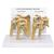 4 Stage Osteoarthritis (OA) Shoulder Model, 1019514, Joint Models (Small)