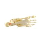 Foot/Ankle - Plantar Fasciitis Model, 1019522, Leg and Foot Skeleton Models