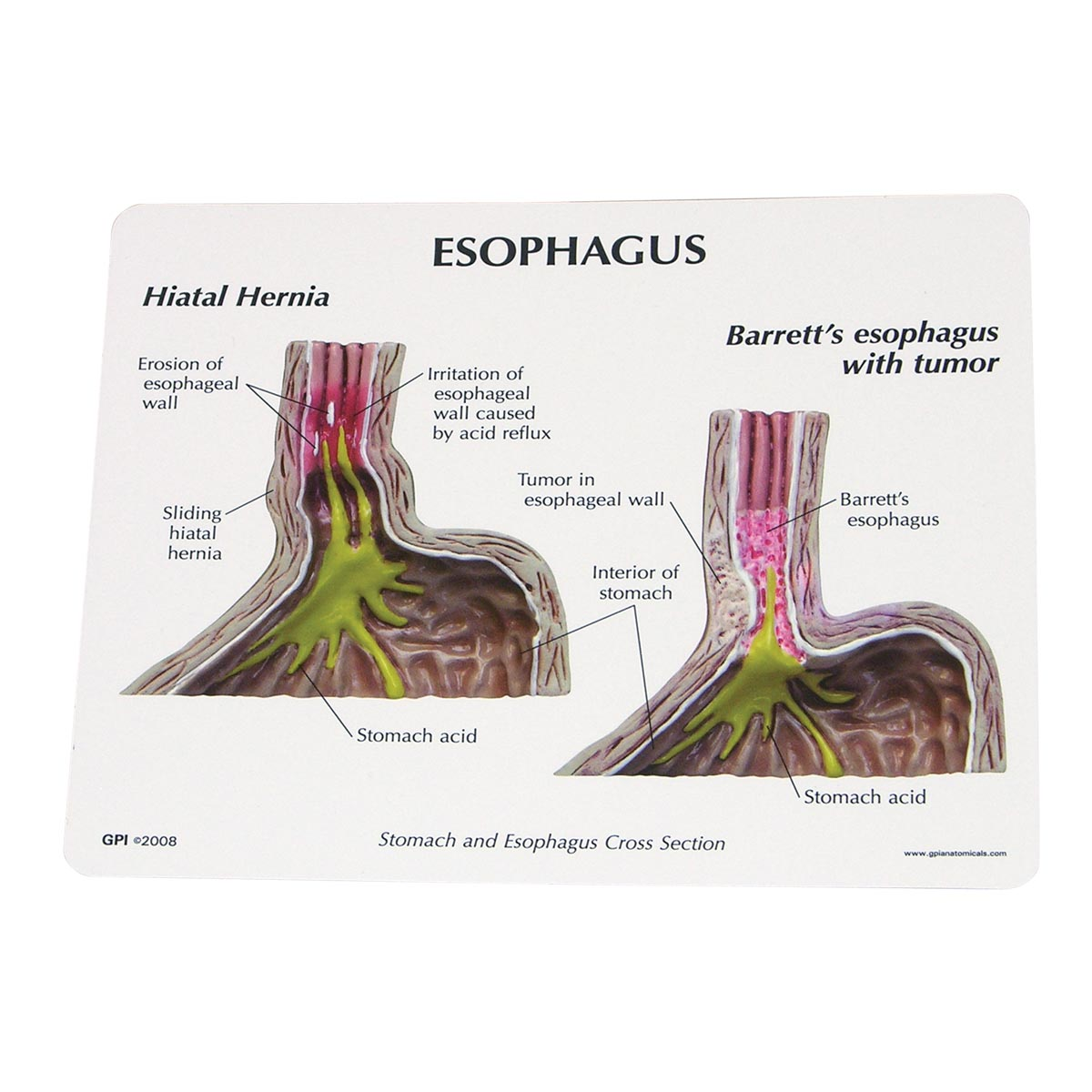 gastro esophageal reflux disease gerd Gastroesophageal reflux disease (gerd) is a condition in which the stomach contents leak backward from the stomach into the esophagus (food pipe) food travels from your mouth to the stomach through your esophagus.