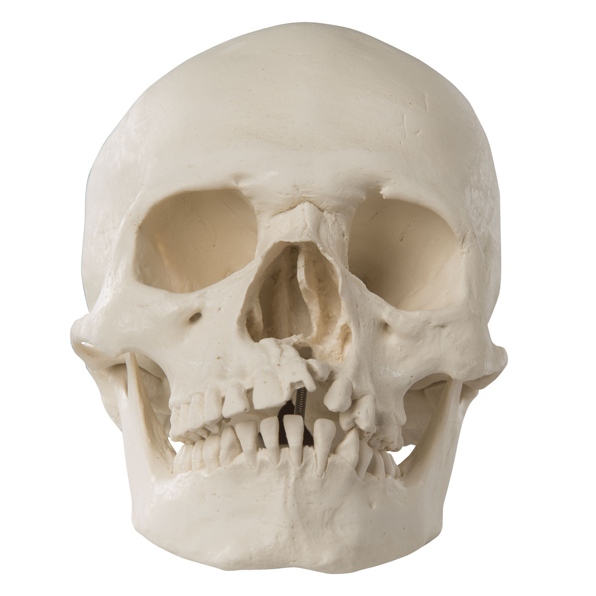 Plastic Skull Model Human Skull With Cleft Palate And