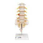 Lumbar Spinal Column with Dorso-Lateral Prolapsed Intervertebral Disc, 1000150 [A76/5], Vertebra Models