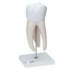 Giant Molar with Dental Cavities, 15 times life size, 5 part,D15