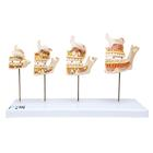Dentition Development, 1000248 [D20], Dental Models