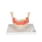 Dental Disease Model, Magnified 2 times, 21 parts - 3B Smart Anatomy, 1000016 [D26], Dental Models