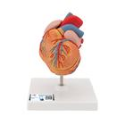 Classic Heart with Left Ventricular Hypertrophy (LVH), 2 part, 1000261 [G04], Human Heart Models