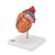 Classic Human Heart Model with Left Ventricular Hypertrophy (LVH), 2 part - 3B Smart Anatomy, 1000261 [G04], Human Heart Models (Small)