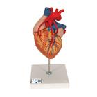 Heart with Bypass, 2 times life size, 4 part,G06