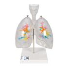 CT Bronchial Tree with Larynx and Transparent Lungs,G23/1