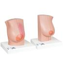 Model of Female Breast with Healthy & Unhealthy Tissue - 3B Smart Anatomy, 1008497 [L56], Breast Models