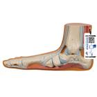 Flat Foot (Pes Planus), 1000355 [M31], Joint Models