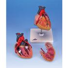 Classic Heart with Bypass, 2 part,PP-G05