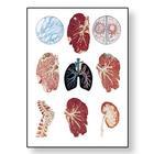 Tuberculosis Chart,V2045M