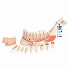 Comprehensive Lower Jaw Model (Left Half) with Diseased Teeth, Nerves, Vessels & Glands, 19 part - 3B Smart Anatomy, 1001250 [VE290], Dental Models