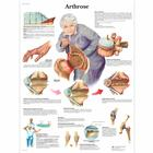 Arthrose, 1001308 [VR0123L], Arthritis and Osteoporosis Education