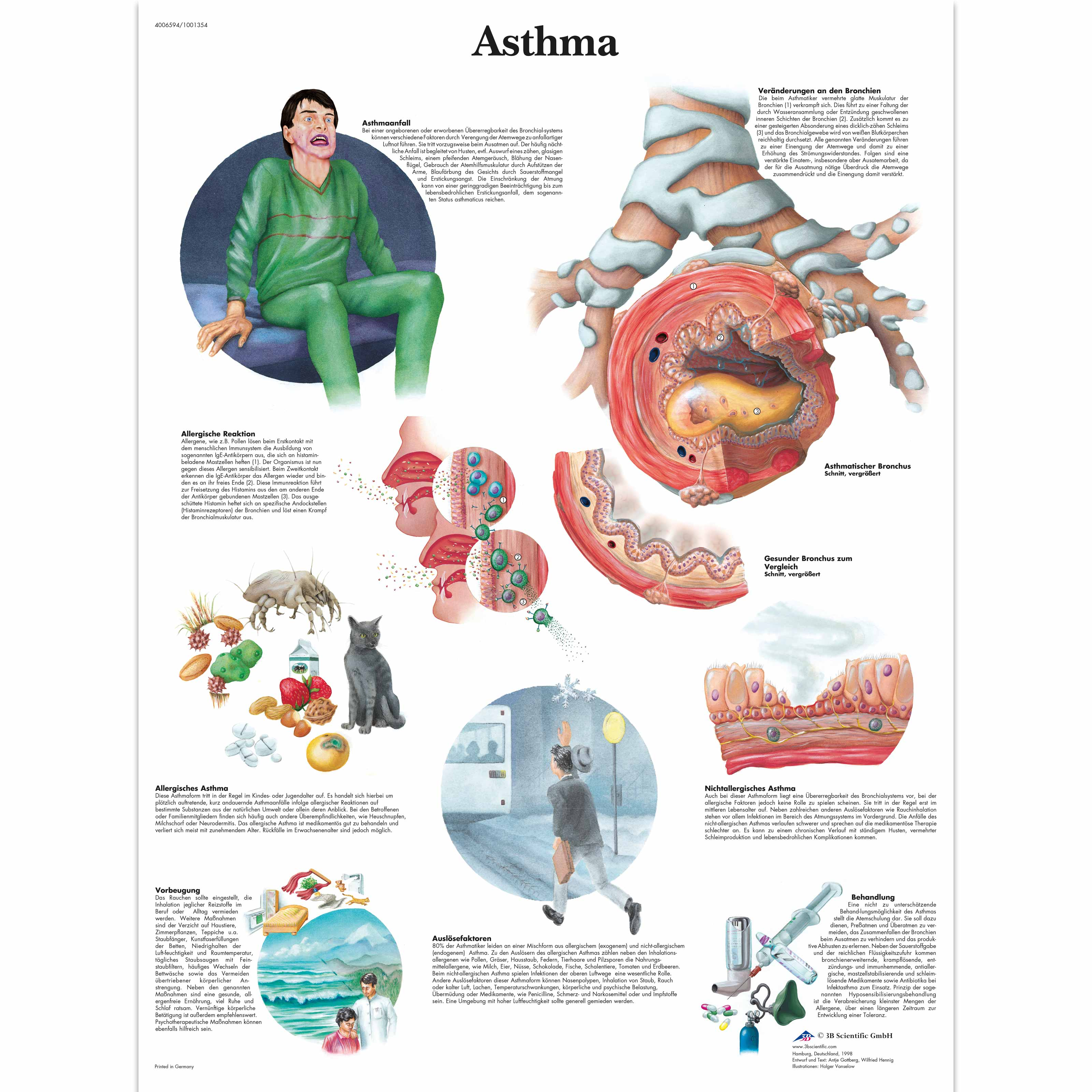 Where to start on an asthma essay?