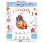 Herzinfarkt, 4006597 [VR0342UU], Heart Health and Fitness Education