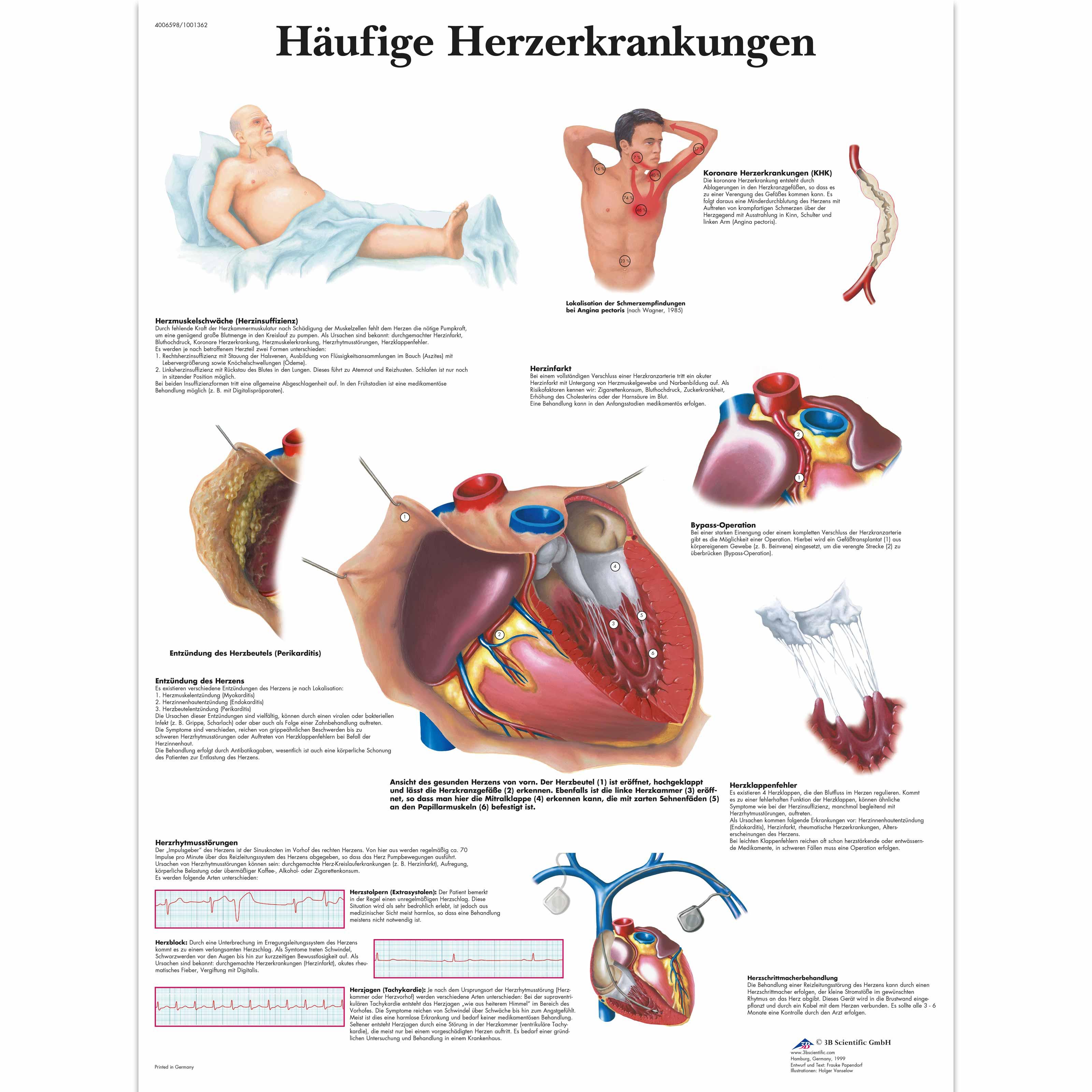 Charmant Herzkammer Anatomie Ideen - Menschliche Anatomie Bilder ...