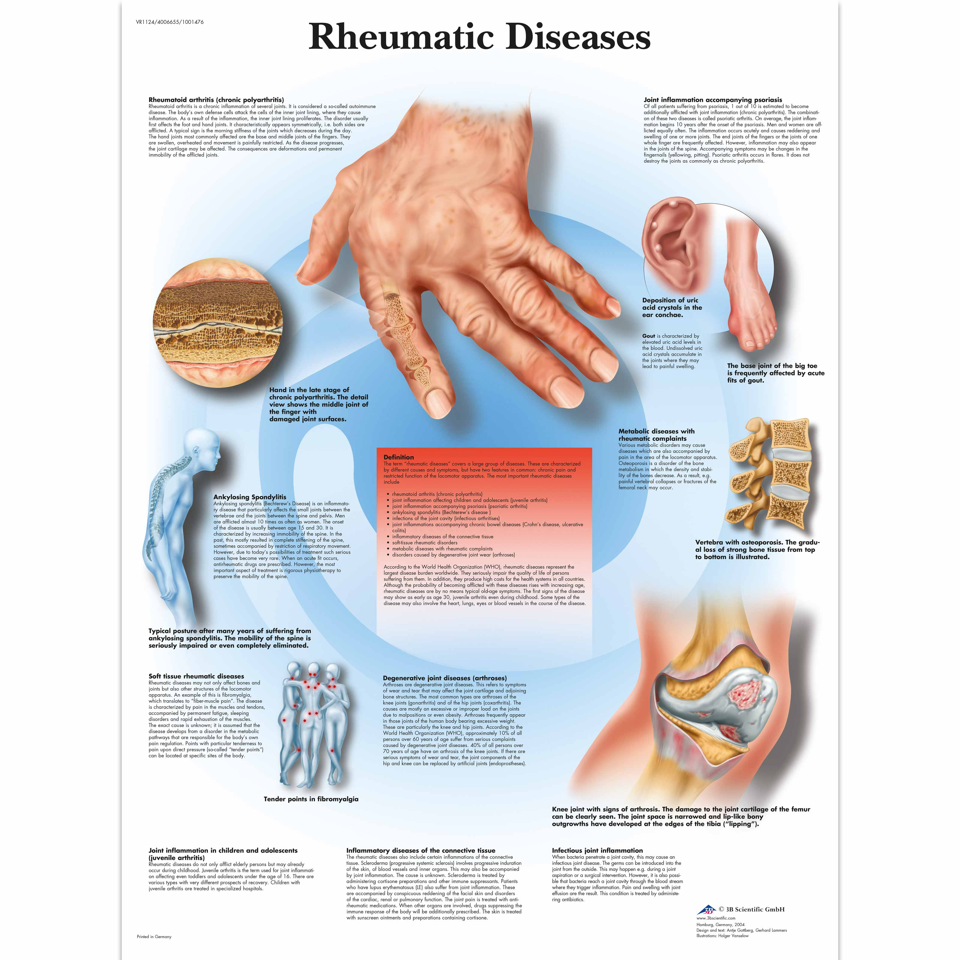 rheumatic fever essay This free health essay on essay: rheumatic heart disease (rhd) is perfect for health students to use as an example.