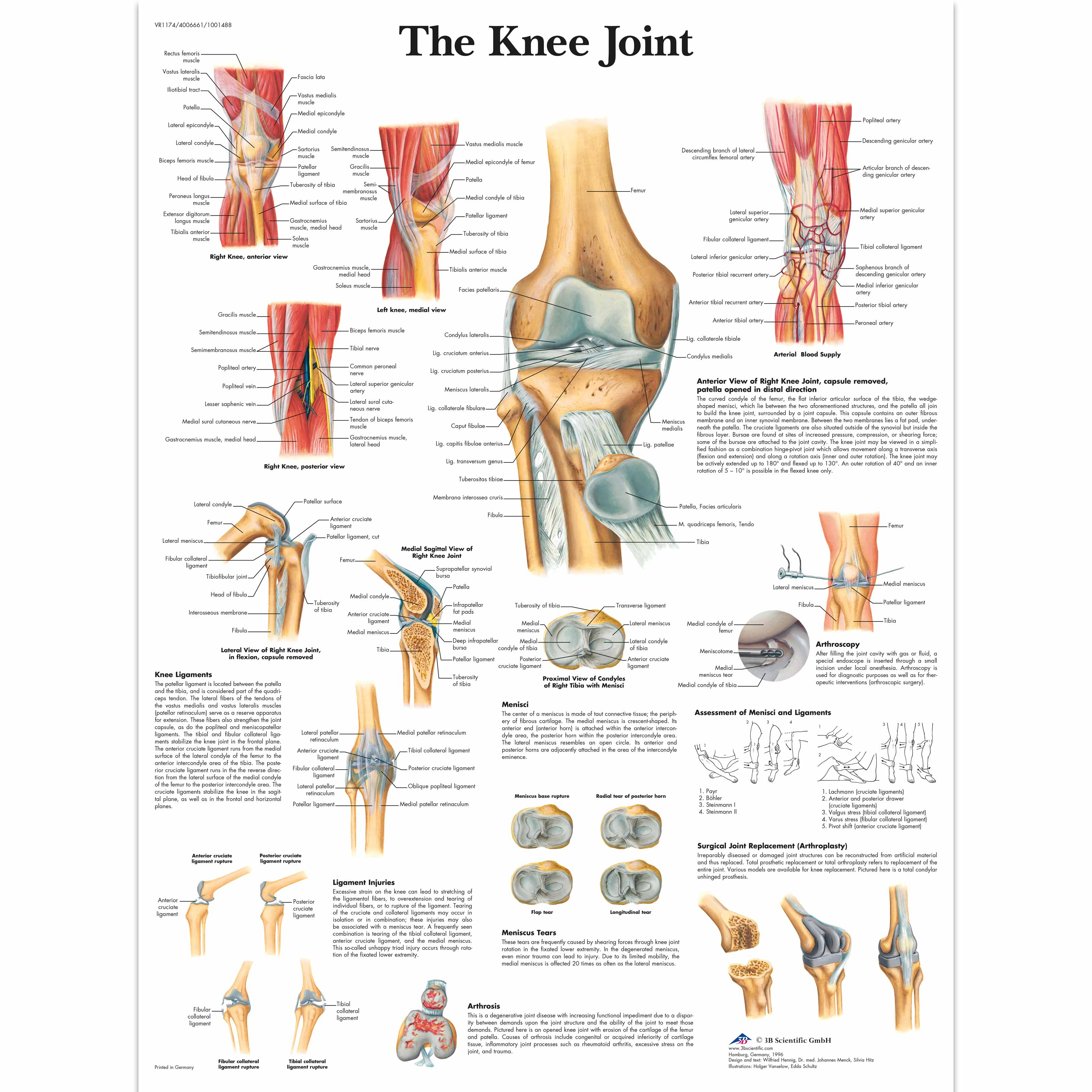Anatomical Charts and Posters - Anatomy Charts - Arm and Leg ...